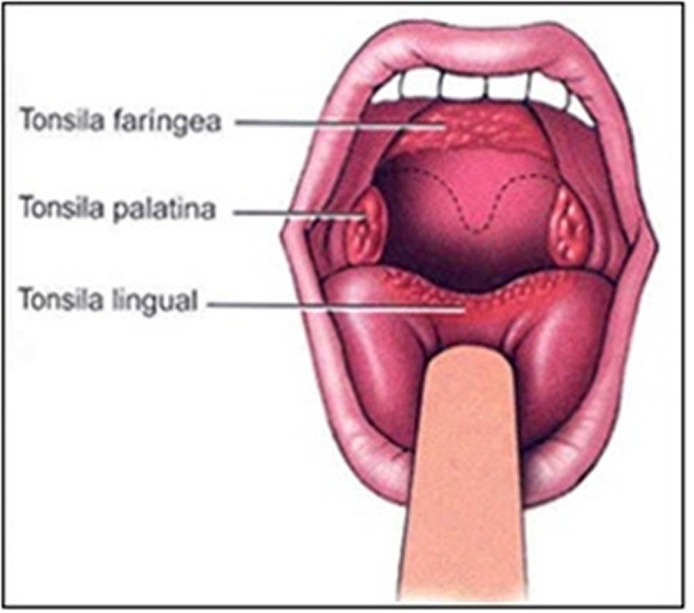 Esquema da localização anatômica das tonsilas . Fonte : http://www.auladeanatomia.com/linfatico/linfa.htm
