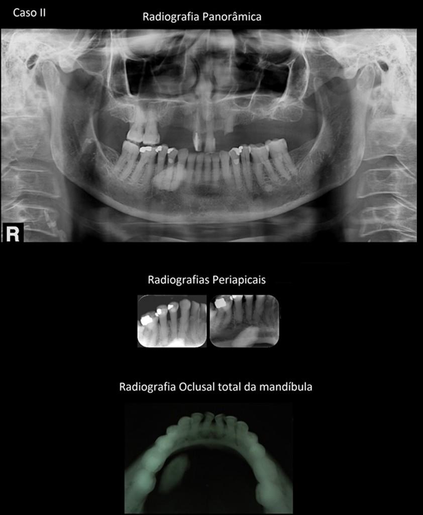 Legenda para o caso II - Por meio da radiografia panorâmica, nota-se imagem radiopaca, de aspecto oval projetada ao processo alveolar da mandíbula, ao lado direito. Pela incidência radiográfica periapical, verificamos a imagem radiopaca projetada ao periápice dos dentes 44 e 45. A radiografia oclusal total da mandíbula, complementar, mostra que a imagem radiopaca está situada em partes moles (espaço sublingual) : imagem compatível com sialólito da glândubla sublingual.