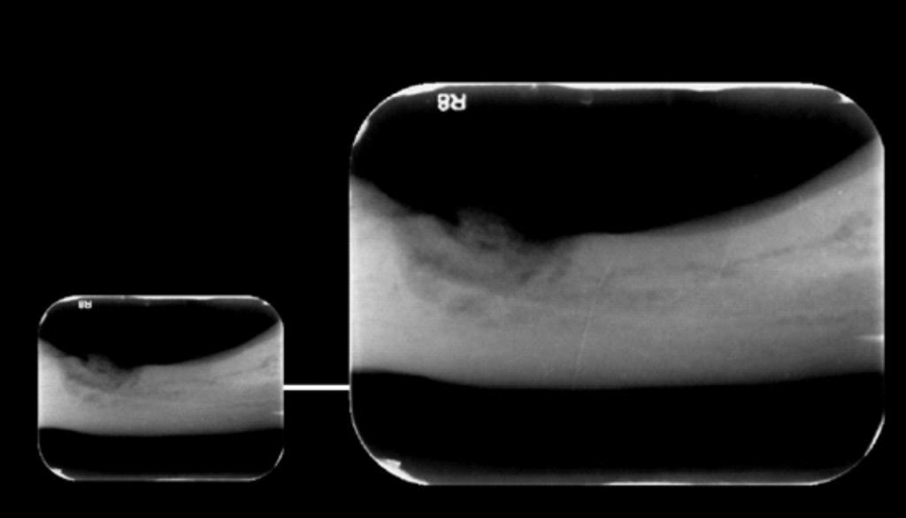 Caso I - A radiografia periapical mostra com mais nitidez a imagem de densidade mista em região correspondente aos elementos 35 e 36, sugerindo Osteomielite Supurativa Crônica, (OSC).