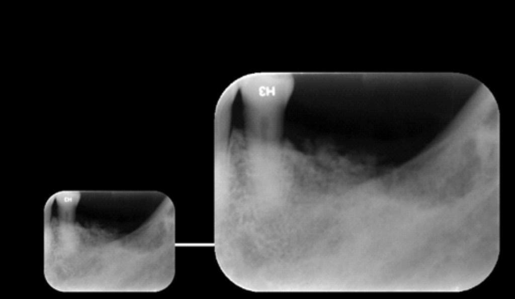 Caso II - A radiografia periapical mostra em detalhes, a imagem de densidade mista e limites difusos em região correspondente aos elementos 36, 37 e 38, sugerindo Osteomielite Supurativa Crônica, (OSC).
