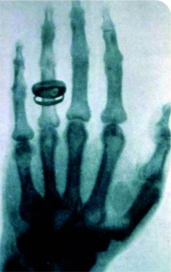 Radiografia da mão da esposa de Roentgen, apresentada em seu primeiro artigo sobre os Raios X