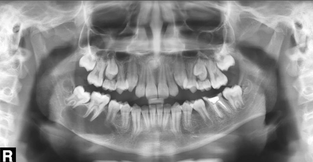 Paciente do gênero masculino, 12 anos de idade. Em corpo e processo alveolar da mandíbula, ao lado direito, notamos imagem radiolúcida de limites parcialmente definidos e corticalizados; notamos a interdigitação da área radiolúcida por entre os dentes 45, 46 e 47 – imagem compatível com COT.