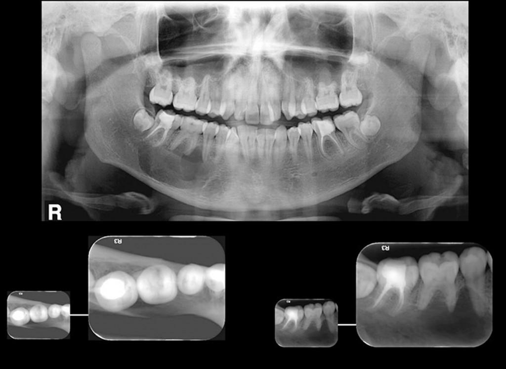 Paciente do gênero feminino, 16 anos de idade. A radiografia panorâmica mostra imagem radiolúcida de limites discretamente definidos e corticalizados, interdigitando-se entre as raízes dos pré-molares e molares, na mandíbula, lado direito. No detalhe: pela vista oclusal (técnica de Miller-Winter), a cortical lingual mostra-se adelgaçada, porém não há aumento de volume. A radiografia periapical mostra a interdigitação da lesão por entre os dentes 47, 46 e 45. Imagem compatível com COT.