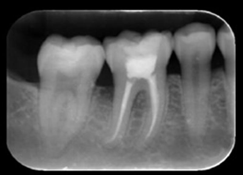 Caso II: Paciente do gênero masculino, 25 anos. Solicitação para avaliação de patologia e pesquisa de fratura dental do elemento 46, onde o paciente relata dor ao mastigar.