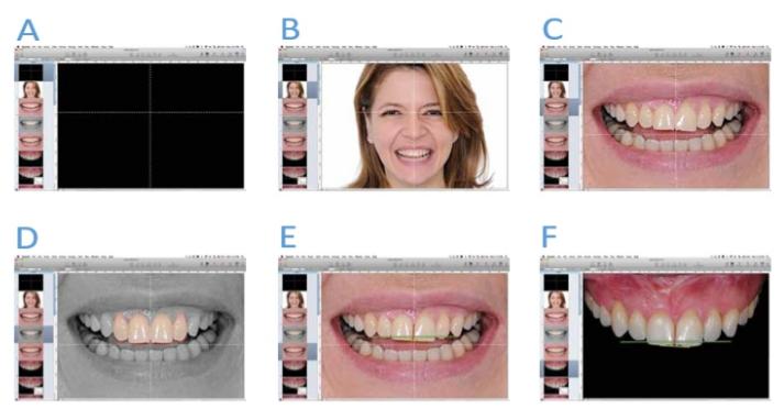 """Software de apresentação de slide (Keynote, iWork, Apple) com a """"cruz"""" no cento do slide(A). Foto facial em sua posição de harmonia em relação à cruz(B). Transferindo a cruz para o sorriso (C). Simulação dental básica(D). As três linhas de transferência para calibragem da foto intraoral(E). Foto intraoral calibrada(F)"""