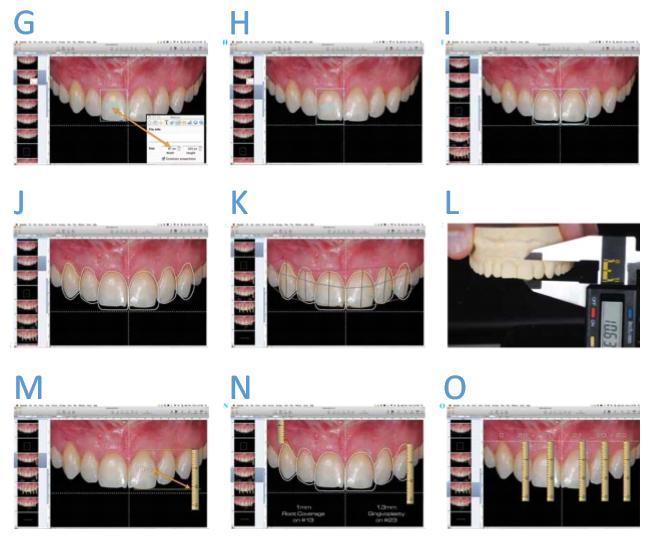 Foto intraoral em relação à cruz facial e com a análise de proporção dental (G). Colocação de um retângulo com proporção ideal (80%) (H). Desenho dental efetuado, guiado pela cruz facial e pelo retângulo de proporção ideal (I). Desenho dental mostrando a relação pré-operatória com o design ideal (J). Outros desenhos podem ser efetuados para melhorar o entendimento estético e a comunicação (K). Medindo o comprimento do incisivo central no modelo. Essa medida será transferida para o computador para a calibragem da régua digital (L). Calibragem da régua digital (M). Utilização da régua digital para medir as discrepâncias entre o estado atual e o ideal (N). Transferência da cruz do computador para o modelo utilizando a régua digital e um paquímetro (O-Q). Confecção do enceramento de diagnóstico guiado pela cruz, desenhada no modelo, e pelas demais medidas provenientes do DSD (R).