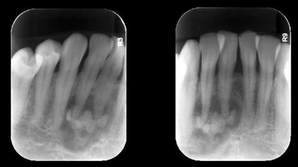 Radiografias periapicais de canino inferior direito e incisivos centrais – imagem de densidade mista envolvendo o periápice dos dentes 43, 42 e 41. DCOP Fase 2ª (cementoblástica)