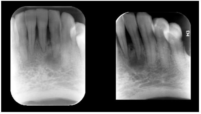 Imagem radiolúcida envolvendo a região periapical correspondente ao dente 32 – notar a integridade de sua porção coronária. DCOP Fase 1ª (osteolítica)