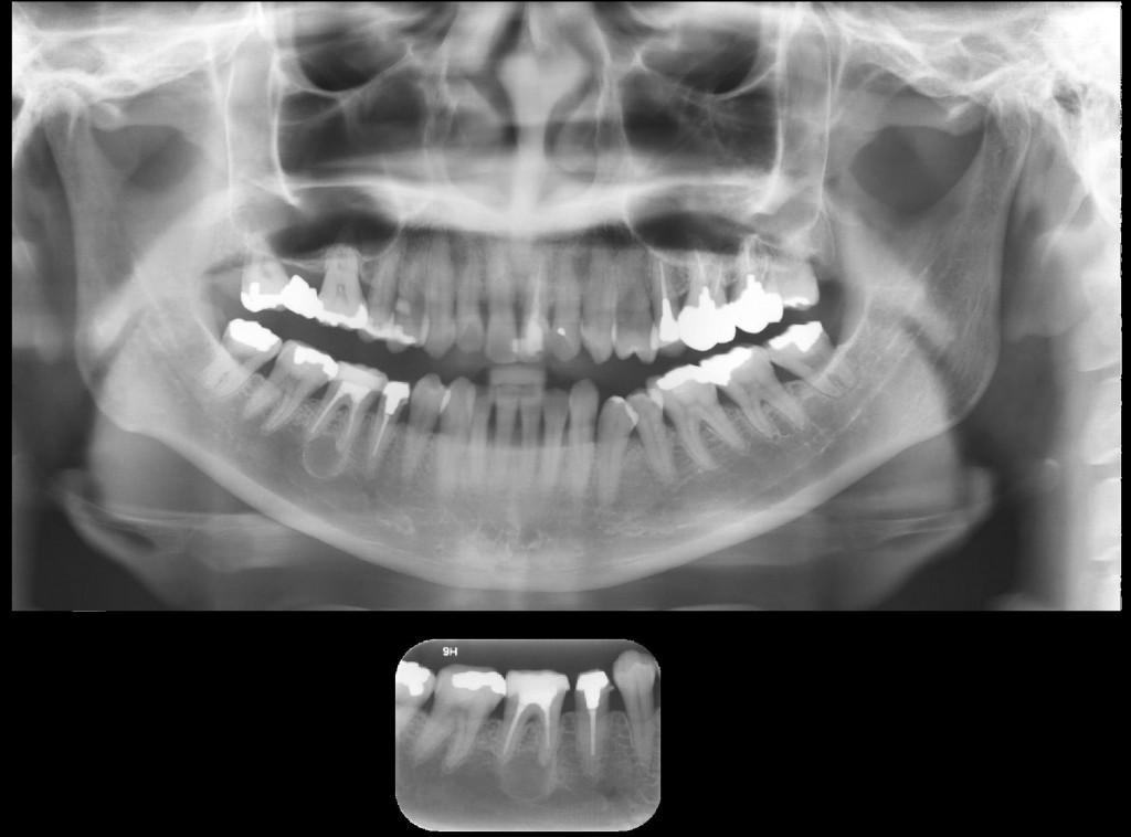 Imagem radiolúcida, circunscrita, de limites definidos e corticalizados, unilocular, envolta por halo radiopaco, associada ao ápice do dente 46 – Cisto Periapical.